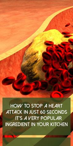 How to Stop a Heart Attack in Just 60 Seconds – It's A Very Popular Ingredient in Your Kitchen - Health Awareness Media Beauty Tips For Hair, Health And Beauty Tips, Stomach Problems, What Is The Secret, Bean Stew, Fatty Liver, Heart Attack, Tropical Plants, Stage