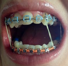 Braces Girls, Cute Braces, Dolly Castro, Brace Face, Rubber Bands, Oral Health, Norfolk, Teeth, Tumblr