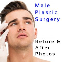 Male Celebrity Plastic Surgery - Before and After Photos #celebsundertheknife #celebs #celebrity #plasticsurgery #celebritysurgery