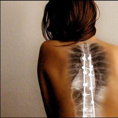 Back Surgery Types Pros and Cons  | healthadvice4life.com
