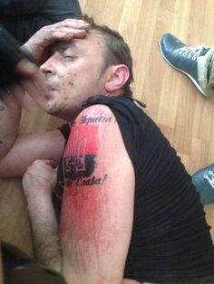 Эсесманы бегом сдирали с себя татуировки. Им шлепали группу крови в подмышку или на плечо. А они сдирали кирпичом, выжигали кислотой, срезали ножом.  С перепугу. Потому что суки.
