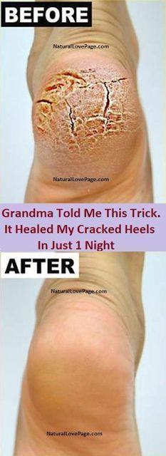 Grandma Told Me This Trick. It Healed My Cracked Heels In Just 1 Night Dry Feet Remedies, Smooth Skin Remedies, Scar Remedies, Cracked Feet Remedies, Natural Remedies, Health Remedies, Cracked Heals Remedy, What Causes Cracked Heels, Heal Cracked Heels