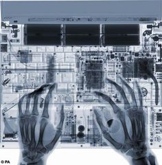 x-ray : the circuitry of humans and machines