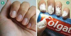 São 12 truques da pasta de dentes muito pouco conhecidos que vamos mostrar agora: 1. Manchas em tapetes e estofados Colo - Central das Notícias – Notícias, vídeos, esportes e diversão