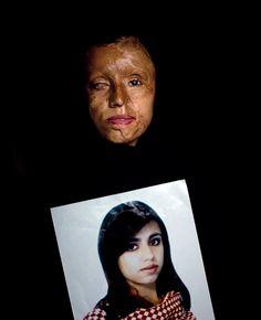 Proyecto de Emilio Morenatti, Violencia de género en Pakistán - FotoPres la Caixa. Certamen de imagen documental