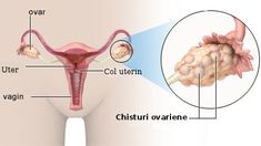 Tinctura de miere elimina chisturile ovariene Polycystic Ovary Syndrome, Pcos, Natural Remedies, The Cure, Health Fitness, Cancer, Healthy, Sport, Erika