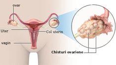 Tinctura de miere elimina chisturile ovariene