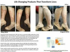 If you have eczema or psoriasis these products will change your life.