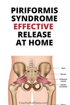 Sciatic Nerve Exercises, Hip Flexor Exercises, Sciatica Stretches, Piriformis Syndrome Treatment, Fitness Websites, Piriformis Muscle, Exercise To Reduce Thighs, Health Site, Health And Fitness Magazine