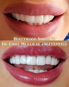 Hollywood Smile Veneers, Dr Emile Medawar , Dentist in Beirut Lebanon, 00961 3 379 355 clinic Hollywood smile dentistry Beirut Lebanon by Oral Surgeon and Cosmetic dentist Dr Emile Medawar Style Dental Clinic Smile Teeth, Teeth Care, Smile Dental, Dental Care, Veneers Teeth, Dental Veneers, Laser Dentistry, Cosmetic Dentistry, Dental Surgery