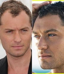 Finding The Best Short Haircuts For Men Receding Hairline Styles, Hairstyles For Receding Hairline, Mens Hairstyle Images, Hair Designs For Men, Shaved Hair Designs, Haircuts For Men, Men's Haircuts, Men's Hairstyles, Widow's Peak