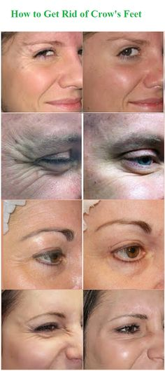 Crow's feet are among the first wrinkles to appear on our faces, and they decorate the complexions of almost everyone over 30. The skin around the eyes is thin and delicate, unlike some of the fattier, more buoyant skin on the face, which is why these lines show up sooner.