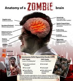 Scientists have previously dubbed the condition of being a zombie 'Conscious Deficit Hypoactivity Disorder', or CDHD, which they describe as an acquired syndrome in which infected people lack control over their actions