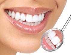 Teeth-Whitening-Singapore . http://sociwiz.net/MintCosmetics