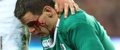 Five penalties from fit-again fly-half Johnny Sexton help defending Six Nations champions Ireland to victory at home to France. Ireland Rugby, Chantel Jeffries, Six Nations, Victorious, Irish, Champion, Facial, England, France