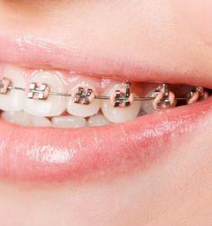 Braces Bands, Braces Tips, Braces Food, Teeth Braces, Cute Braces Colors, Better Braces, Dental Logo, Dental Care, Dental Videos