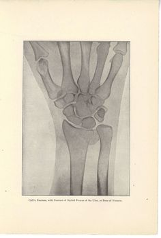 Antique 1911 Medical Print of Hand X-Ray / Human Anatomy $4