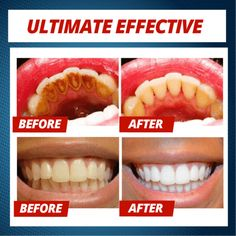 Intensive Stain Removal Whitening Toothpaste - Sparkling Teeth In Seconds! Herbal Toothpaste, Natural Toothpaste, Natural Teeth Whitening, Whitening Kit, Natural Stain Remover, Teeth Stain Remover, Stained Teeth, Teeth Cleaning, Beauty Secrets