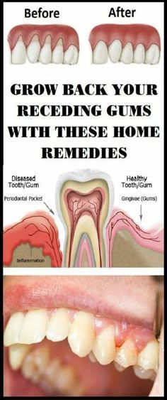 The situation of receding gums happens when the tissue of the gum around the teeth corrodes and it looks like your gums recede backwards. Then a large surface of the teeth is exposed and more visible. When the gums go back, the space between the gum line and the teeth rises. That is perfect place …