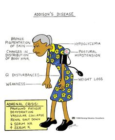 Addison's Disease signs and symptoms.