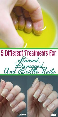 5 different treatments for stained, damaged and brittle nails: