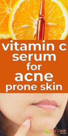 Most people wonder if Vitamin C serum is good for acne prone skin. Here is some information that will help you decide if Vitamin C serum is good for acne prone skin. Read more about Vitamin C serum at theskincarereviews.com. #vitamincserum #acne Beauty Tips For Glowing Skin, Clear Skin Tips, Acne Skin, Acne Prone Skin, Best Acne Products, Skin Products, Beauty Products, Best Solution For Acne, Skin Care Routine 30s