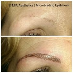 MIA®Microblading-Eyebrows
