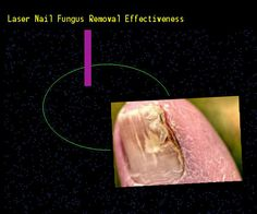 Laser nail fungus removal effectiveness - Nail Fungus Remedy. You have nothing to lose! Visit Site Now