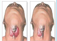 Gırtlağın ön tarafında bulunan tiroid bezi salgıladığı hormonlarla, vücuttaki tüm organların işleyişini ve metabolizmasını etkiliyor. ...