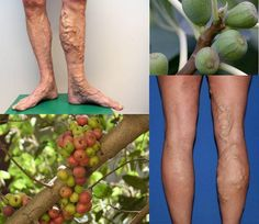 சித்த  மருத்துவம் By Ramanathan C: varicose veins