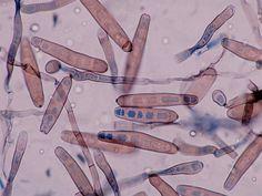 Spores of Exserohilum rostratum.  Image source and copyright: Glenn Roberts.