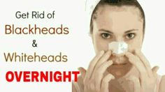 Effective Ways to Remove Blackhead Overnight.jpg