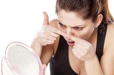 Cómo quitar las espinillas de la nariz rápido