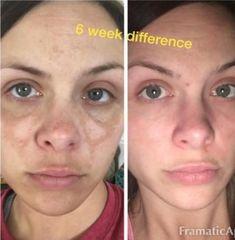 20 Quitar Manchas Ideas Skin Care Skin Beauty Skin Care