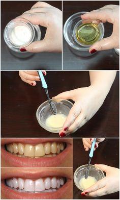 How To Whiten Teeth - Best Teeth Whitening Remedy - Teeth Whitening At Home - Teeth Whitening Home Remedies