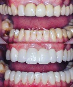 Quite the porcelain makeover. Paper white teeth.. #odonto #beforeafter #dentistry #odonto #dentist #dentista #dental #dentistrylife #dentalassistant  #teeth  #dentalsurgery #odontolove #enamel #hygiene #dentalschool #dentalhygienist #odontologia #dentes #instadentist #dentalhumor #dentalgram #healthyteeth #instateeth #dentalnurse #dentalphotogaphy #teethfaq for repost