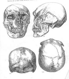 Nephilim Chronicles: Giant Human Skeletons: Nephilim - Neanderthal Hybrid Skeletal Remains Uncovered in a Burial Mound at Stonehenge