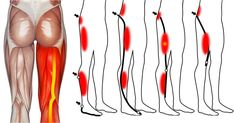 Simple Exercises That Relieve Leg Pain inthe Blink ofanEye Sciatic Pain, Sciatic Nerve, Nerve Pain, Sciatica, Stretches For Legs, Leg Stretching, Muscle Stretches, Leg Pain, Back Pain