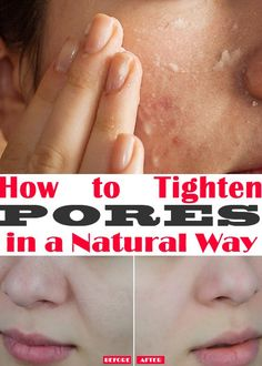 How to Tighten Pores in a Natural Way | Beauty & Health Secrets