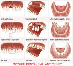 #Dental #implants clinics offer the most accurate procedure to their patients. You can search the web for these #clinics and get the whole procedure done to get that flawless #smile.