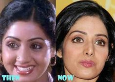 Aishwarya Rai Shilpa Shetty Sridevi Priyanka Chopra Kareena Kapoor Like these celebrities, anyone can improve their look by undergoing Nose Reshaping At Marmm Klinik, Indore. Shilpa Shetty, Priyanka Chopra, Nose Reshaping, Rhinoplasty Surgery, Indore, Aishwarya Rai, Kareena Kapoor, Celebrities, Bollywood