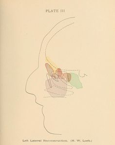 Plate III. Left lateral reconstruction in sinus disease (H. W. Loeb.) Diseases of the nose, throat and ear, medical and surgical. 1916.