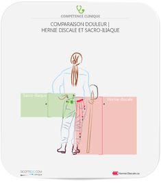 Sacro-iliaque et hernie discale comparaison de symptômes