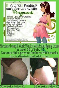 It Works! products are absolutely amazing. One of the BEST remedies for stretch marks and cellulite is the Defining Gel. Stretch Marks On Thighs, Stretch Mark Cream, It Works Wraps, Stretch Mark Remedies, It Works Global, Defining Gel, Hydrating Toner, It Works Products, Crazy Wrap Thing
