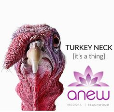 Get rid of your turkey neck at Anew and get Anew You today! Call us for our Black Friday and Cyber Monday once a year specials! To see us as a patient call 216 255-5201 go to www.anewmedspa.com or email info@anewmedspa.com today!  Phone: 216-255-5201 Website: www.anewmedspa.com  Info@anewmedspa.com Location: Beachwood OH   Facebook: AnewMedspa Twitter: AnewMedspa