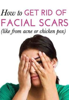 How to get rid of pitted facial scars from acne or chicken pox. There are things that can really help.