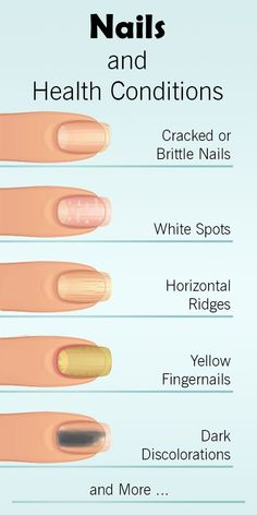 How Your Nails Warn You About Serious Health Conditions - Th.- How Your Nails Warn You About Serious Health Conditions – The Health Science Journal nails-health-conditions - Nail Symptoms, Fingernail Health, Nails And Health, Fingernail Fungus, Fingernail Ridges, Fungus Toenails, Brittle Nails, Manicure Y Pedicure, You Nailed It