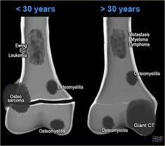osteosarcoma x ray sunburst - Google-søk