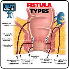 How I naturally healed my gross Anal Fistula using natural treatments and remedies. Fistulas are very common with IBD's like Crohn's Disease and Ulcerative Colitis. Ulcerative Colitis, Autoimmune Disease, Crohn's Disease, Levator Ani, Heal Cavities, Night Sweats, Health And Beauty Tips, Health Tips, Crohns