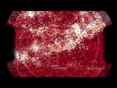 Jeunesse | Zen Bodi Para las tres etapas de perdida de grasa por Jeunesse - YouTube